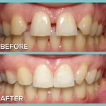 Dr Kershman orthodontist braces before and after