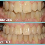 Dr Kershman Canada braces before and after