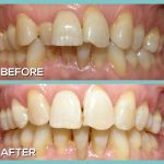 Dr Kershman teeth alignment through braces before and after