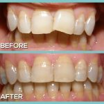 Dr Kershman ottawa invisalign before and after