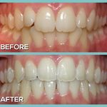 Braces Treatment by Dr Kershman invisalign before and after