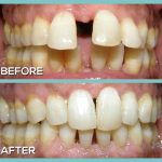 Check before and after braces and invisalign treatment by Dr Kershman Ottawa
