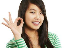Braces treatment from Dr Kershman, Ottawa Ontario