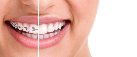 Braces and Invisalign Treatment from Dr Kershman Ottawa