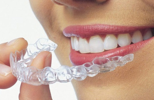 THE TOP TEN REASONS INVISALIGN IS BETTER THAN TRADITIONAL BRACES